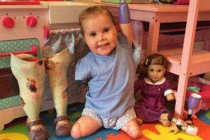 She has done it: Tot who lost all four limbs takes first steps on prosthetic legs